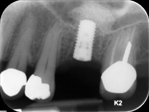 straumann_implant_sinus-lift