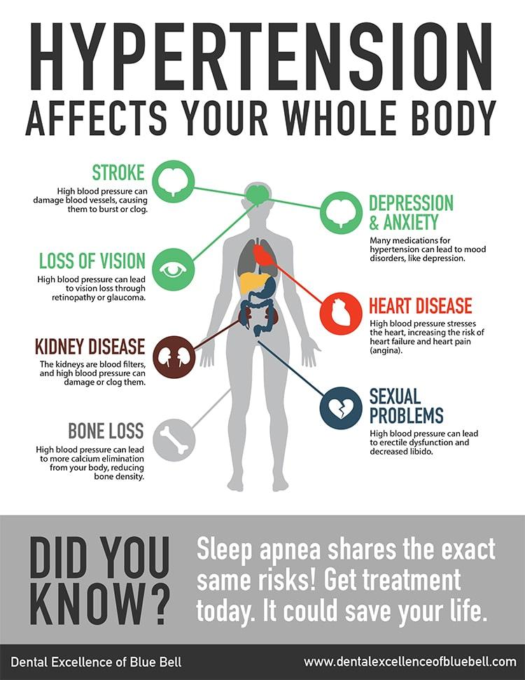 Siegel-sleep-apnea-infographic
